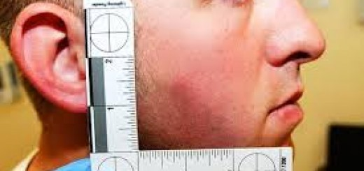 darren-wilson-1-injury